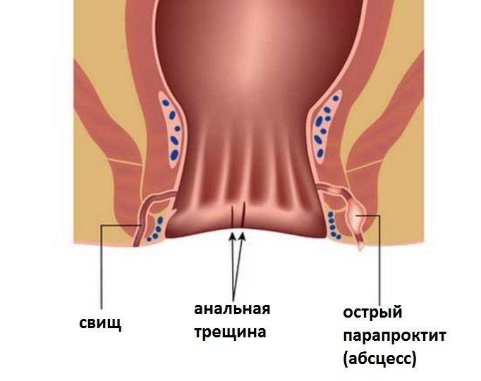 kak-viglyadit-popa-devushki-posle-analnogo-seksa