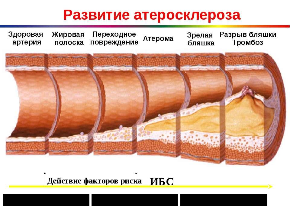 Центр атеросклероза и нарушений липидного обмена москва